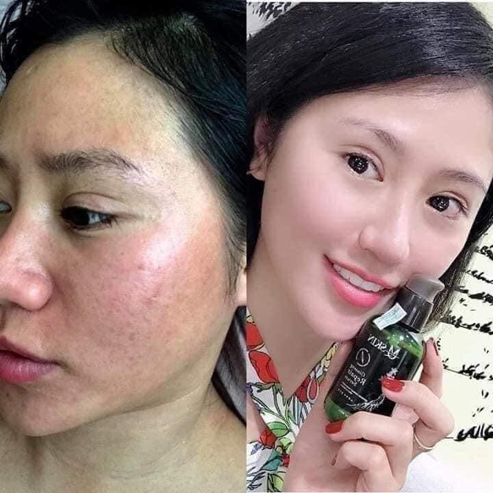 Thời gian tái tạo da khi dùng bộ tái tạo MQ Skin